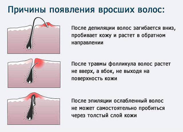 Причины появления вросших волос