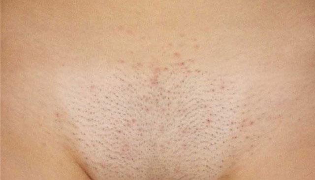 Как сделать так чтобы после бритья не было раздражения