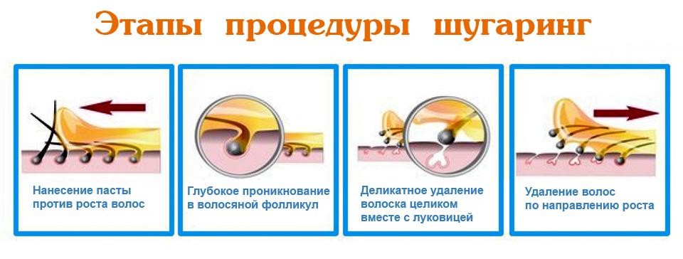 Этапы сахарной эпиляции