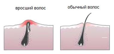 vrosshie-volosi