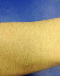 последствие равинола - желтая кожа